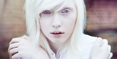 Albinism - What Causes Albinism in Humans the world have higher
