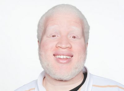 Albinism - What Causes Albinism in Humans brown in color