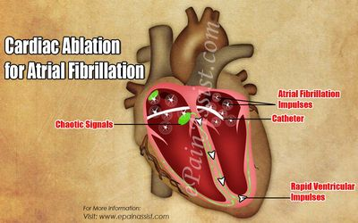 Cardiac Ablation Therapy - A Brief Overview of oxygen and that