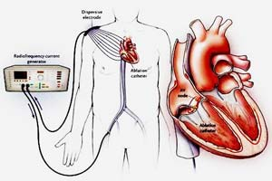 Cardiac Ablation Therapy - A Brief Overview It also helps to