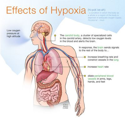 What Is Hypoxia? to avoid