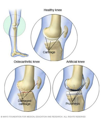 What to Do About Knee or Ankle Problems to help determine what type